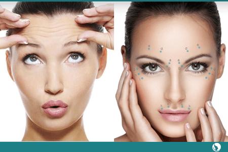 Tratamiento Anti-Arrugas Colocación de..